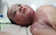Sẹo co kéo khiến cậu bé bị bỏng xăng không thể quay nổi đầu