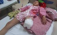 Cô bé mắc ung thư xương Phương Chi đã phải cắt một bên chân