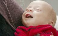 Người thứ hai tại Mỹ sinh con nhờ tử cung ghép
