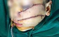 Những tình huống pháp lý vụ cha chém con trai 5 tuổi phải khâu 300 mũi