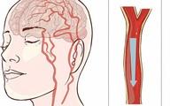 Người đàn ông 40 tuổi bị nhồi máu não, bác sĩ chỉ rõ: Ăn sáng theo 2 kiểu này thì sớm muộn mạch máu cũng bị tổn thương, tăng nguy cơ đột quỵ