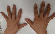 """10 ngón tay đau nhức và biến dạng, người phụ nữ điếng người khi bác sĩ thông báo """"Không có thuốc chữa"""""""
