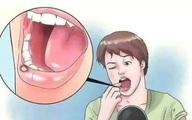 5 triệu chứng bất thường cho thấy bạn đang có nguy cơ mắc ung thư miệng