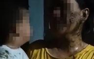 Thương xót bé trai 2 tuổi bị người hàng xóm đổ chất thải lên người