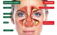 Đừng nhầm viêm xoang với viêm mũi dị ứng!