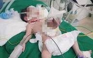 Nghệ An: Cứu sống bé sơ sinh có nội tạng nằm ngoài ổ bụng