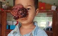 Đau lòng nhìn em bé dân tộc bị khối u đẩy lồi mắt ra ngoài, nguy cơ nhiễm trùng cao không có tiền chữa bệnh