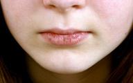 Người dễ mắc bệnh phụ khoa thường có 4 đặc điểm trên mặt, sau tuổi 20 chị em cần đặc biệt chú ý!