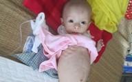Đắng lòng bé 8 tháng suy dinh dưỡng chỉ còn da bọc xương