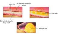 Nguyên nhân số 1 gây tử vong và tàn tật do huyết áp cao