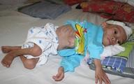 Xót lòng bé 3 tuổi đói nghèo chỉ còn da bọc xương