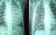 Cứu sống bệnh nhi 2 tuổi bị bệnh tim hiếm gặp