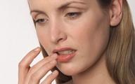 Cứng miệng vì nhầm keo dán thành kem dưỡng môi