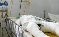Thiếu nữ bị thiêu trước cổng phòng trà đã tử vong