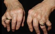 Những kiểu biến dạng khớp do viêm khớp dạng thấp