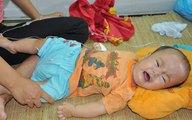 Ngằn ngặt tiếng khóc của bé 10 tháng tuổi phải đối mặt với ca mổ sinh tử