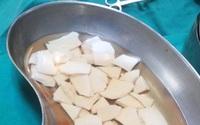 Kinh hoàng gắp 59 mảnh chén vỡ găm trong bụng bệnh nhân