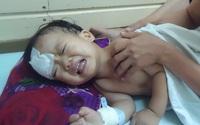 Cháu bé có hai khối u ở mắt và ở não vẫn cần phẫu thuật tiếp
