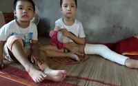 Đau thương số phận hai đứa trẻ cùng mắc bệnh đông máu không thể chữa trị
