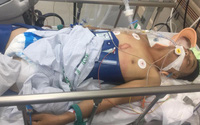 Thông tin mới nhất về người đàn ông bị điện giật nguy kịch có mẹ già và 3 con bệnh tật