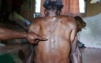 Số phận bi thảm của người bị kết tội phù thủy ở Papua New Guinea