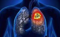 Cảnh báo 5 dấu hiệu không ngờ đến của ung thư phổi