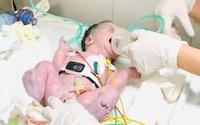 Những điều mẹ cần làm trong thai kỳ để tầm soát dị tật tim bẩm sinh