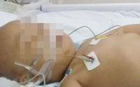 Bé trai 4 tuổi ở Thanh Hóa mắc ung thư máu, hôn mê sâu đã qua đời dù được hỗ trợ và cứu chữa tận tình