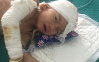 Hai người còn sống trong vụ cả nhà bỏng nặng do cháy điều hòa ở Hà Tĩnh đã có tiến triển tốt
