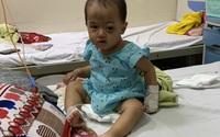 Người cha dân tộc nghèo bất lực nhìn khối u ở mắt của con gái 1 tuổi ngày một lớn