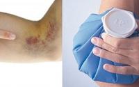 Hạn chế vết bầm trên da