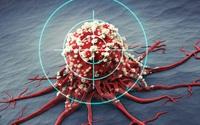 Đây là 5 tác nhân gây ung thư nhóm 1, ẩn giấu ở ngay trong gia đình: Tất cả đều đã được WHO công nhận và cảnh báo từ lâu