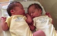 Cặp sinh đôi được thụ thai cách nhau 3 tuần