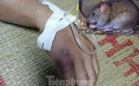 Suýt mất mạng vì sốt hạch nghi chuột rừng cắn