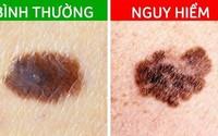 Các dấu hiệu cảnh báo ung thư đang xảy ra trên nốt ruồi trước đây là nốt ruồi lành tính