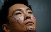Hiện tượng mới nam giới Trung Quốc dao kéo để mong đổi đời, thành công
