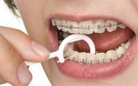 Điểm danh những tác hại của niềng răng có thể bạn chưa biết