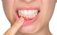 5 dấu hiệu ở miệng cho thấy gan đang bị tổn thương nghiêm trọng, mắc 1 điểm cũng cần đi khám ngay