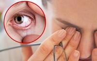 3 biểu hiện bất thường ở mắt ngầm cảnh báo gan có vấn đề, xem thử bạn có dấu hiệu nào hay không