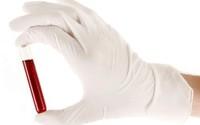 Biết trước tuổi thọ nhờ... xét nghiệm máu