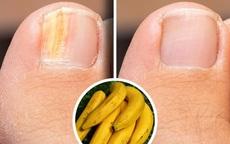 8 cách khắc phục móng tay giòn yếu, nhiễm nấm