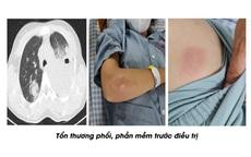 Cô gái trẻ bỗng nhiên sưng đau ngực, khám 3 viện không khỏi, ai ngờ mắc loại khuẩn nguy hiểm