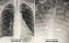 Khác biệt giữa phổi người bệnh Covid-19 đã tiêm vắc xin và chưa tiêm