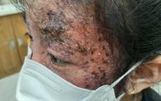 Bôi thuốc trị nấm da sai cách, mặt bé gái 8 tuổi bị tổn thương nghiêm trọng, bác sĩ chỉ rõ hậu quả không ngờ tới