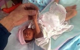 Bé gái sinh non sống sót kỳ diệu sau 2 giờ bị chôn sống