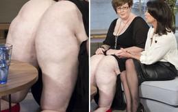 Người phụ nữ có đôi chân nặng nhất hành tinh