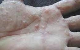 Bệnh chàm tổ đĩa và cách trị bằng đông y