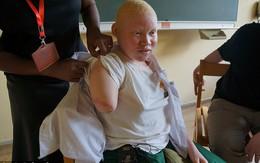 Cô gái bạch tạng kể lại giây phút kinh hoàng bị những kẻ săn người chặt tay
