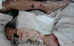 Nổ ống dẫn khí, 4 công nhân bị thương