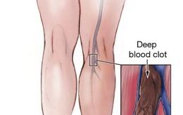 Phẫu thuật nổi gân xanh ở tay, chân có tốn kém không?